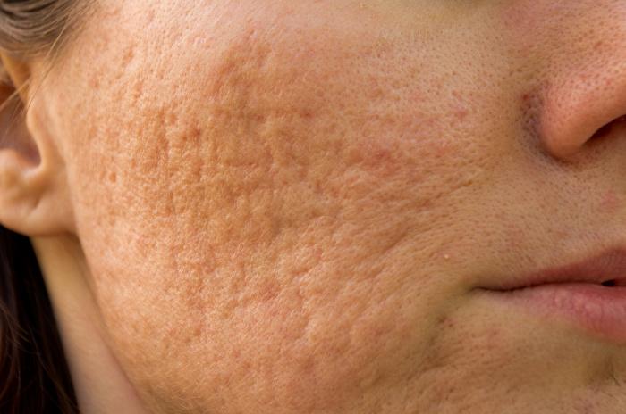 クレーター肌の原因と治し方