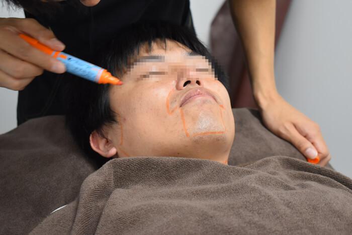 ひげ脱毛 施術