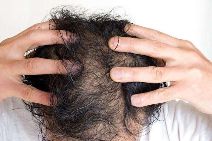 女性に嫌われるつむじハゲ 髪型