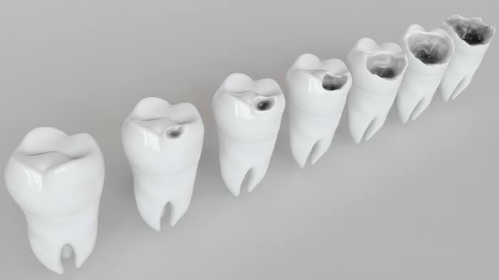 虫歯ケアを行う
