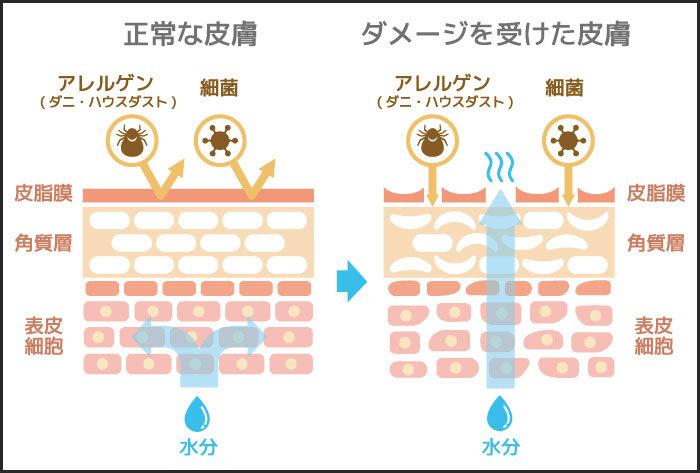 ①保湿不足が肌荒れの原因
