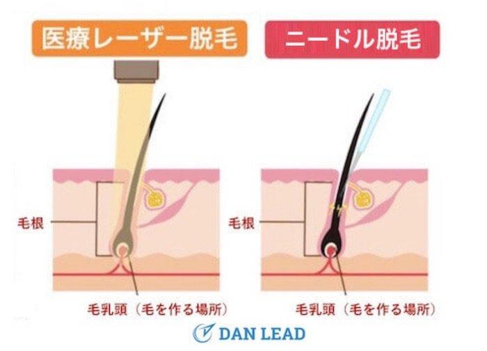 ヒゲを永久脱毛する方法