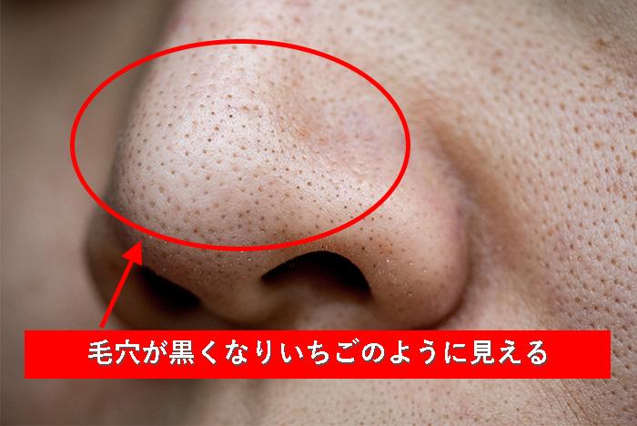 ①黒ずみ毛穴
