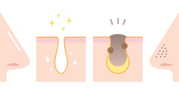 ◆角栓のイメージ図