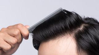 育毛剤の効果を高める正しい使い方!高い育毛剤を無駄にしないための頭皮ケアを徹底解説