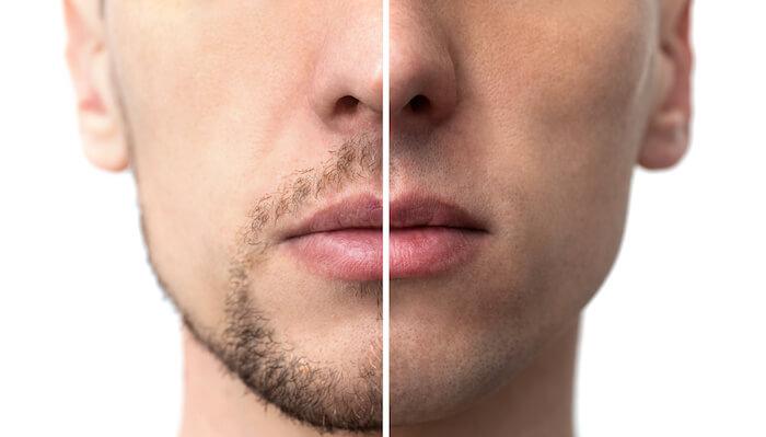 完全に髭を永久脱毛するのに2年前後かかる