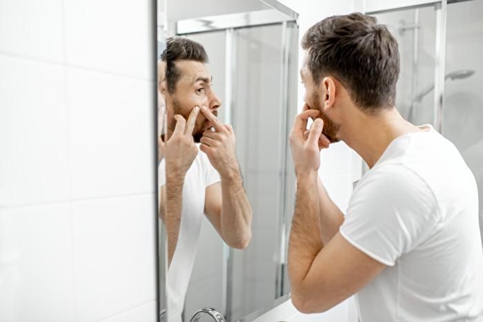 クレーター肌は自力で治せる?男性のニキビ跡の原因と治し方を解説